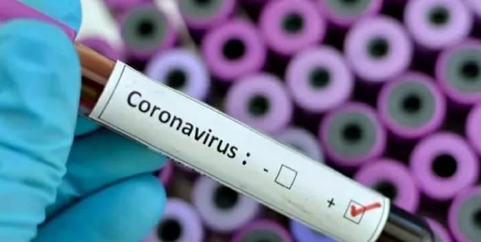 छपरा शहर में प्रत्येक वार्ड के लोगों का होगा कोरोना वायरस टेस्ट, शहर में लगातार बढ़ रहे हैं मामले